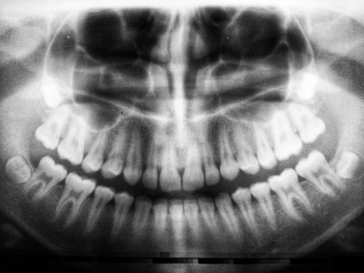 photo of dental x-rays