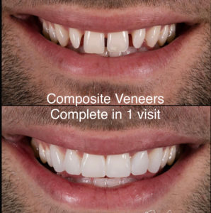 Example of Dental Composite Veneers (NYC)