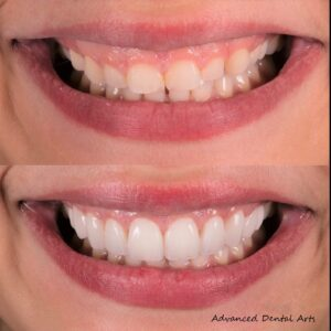 Before and After Woman Veneers