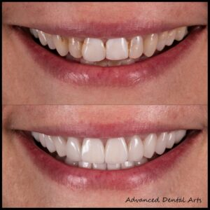 Before and After Veneers in NYC