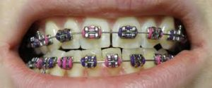 Braces hurt more and cost more than Invisalign