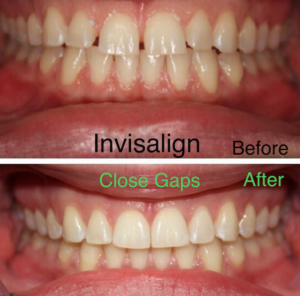 before/after invisalign