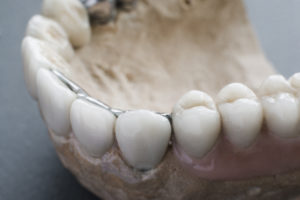 dental implants up close