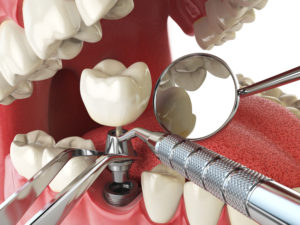 dentists use a high level of expertise to place dental implants explains the cost