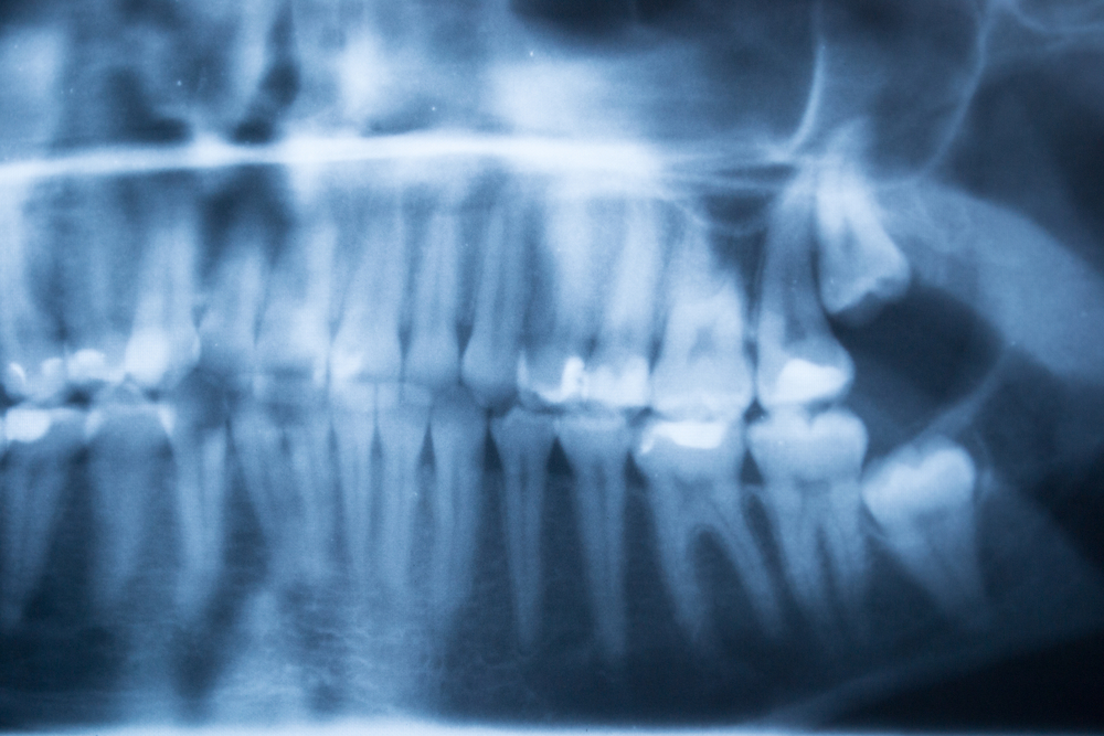 wisdom teeth extraction cost