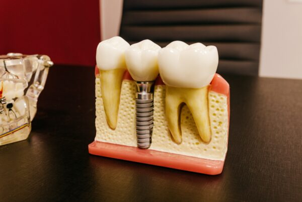 dental implants in new york city